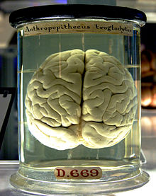 This is your brain. This is your brain in a jar. Any questions?